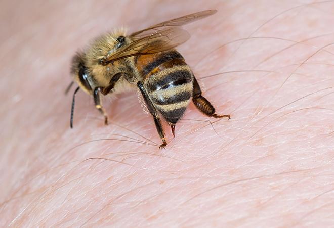 bị ong đốt là điềm gì 3
